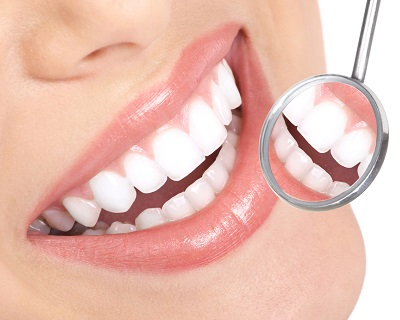StreetDeal Health & Beauty Deal: Bishan: Professional Teeth Whitening TRT
